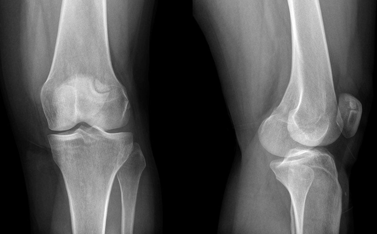 """В """"МИСиС"""" разработали новый сплав для костных имплантов"""