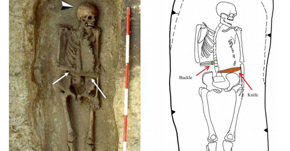 Найден средневековый скелет с удивительным для того времени протезом