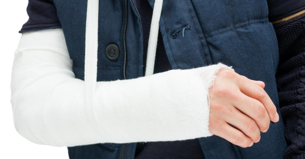 Учёные научились быстрее заживлять переломы